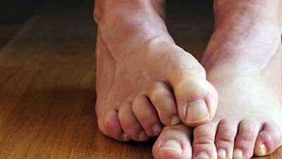 Fötter med mycket fotsvett
