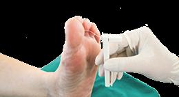Fotvård vid diabetes kolla dina fötter regelbundet hos en fotterapeut Fotvårdsprodukter